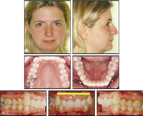 Treatment of Class II, Division 2 Malocclusion in Adults