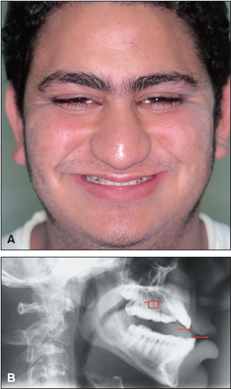 Elements of Smile Aesthetics and Craniofacial Dystrophy