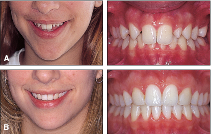 OVERVIEW The Eight Components of a Balanced Smile - JCO