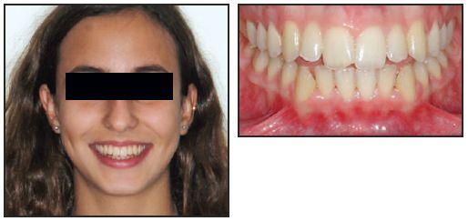 a patients guide to orthodontic treatment
