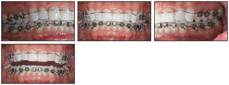 Bracket Positioning For Smile Arc Protection Jco Online Journal