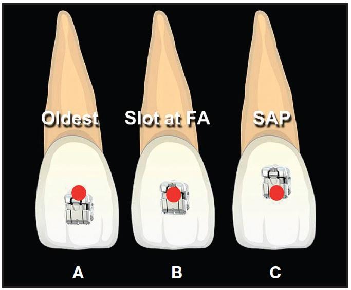 Bracket Positioning for Smile Arc Protection - JCO Online