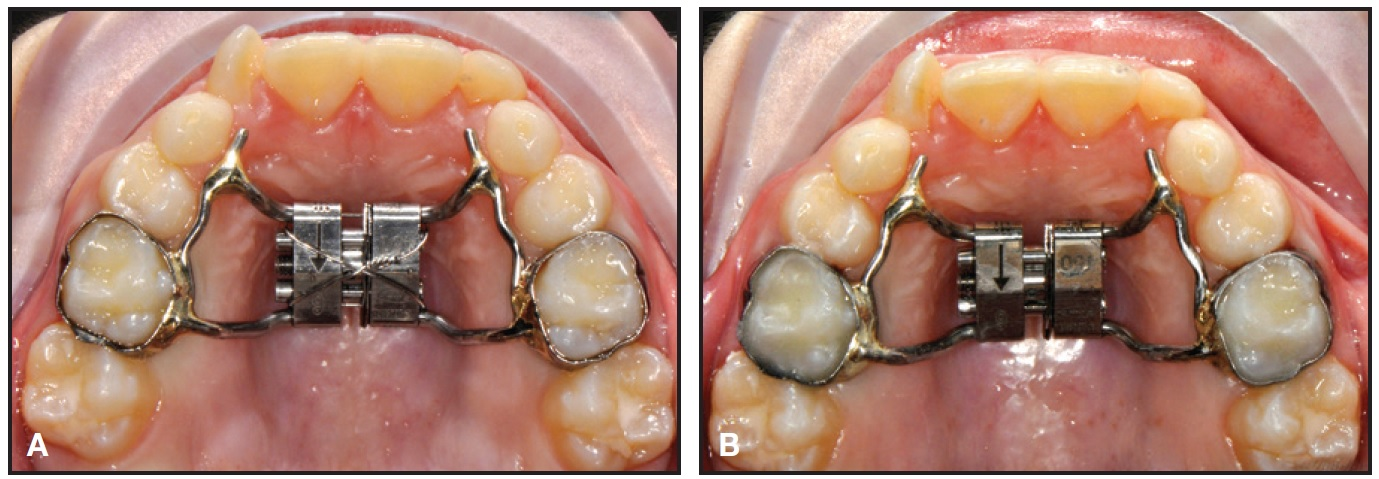 The Leaf Expander for Non-Compliance Treatment in the Mixed