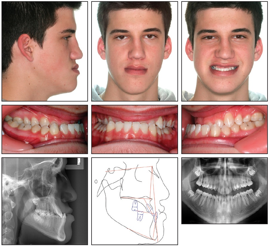 2 Case 1. 18-year-old male with severe skeletal Class III malocclusion,  full lateral and anterior crossbites, and midline shift to right before  treatment.