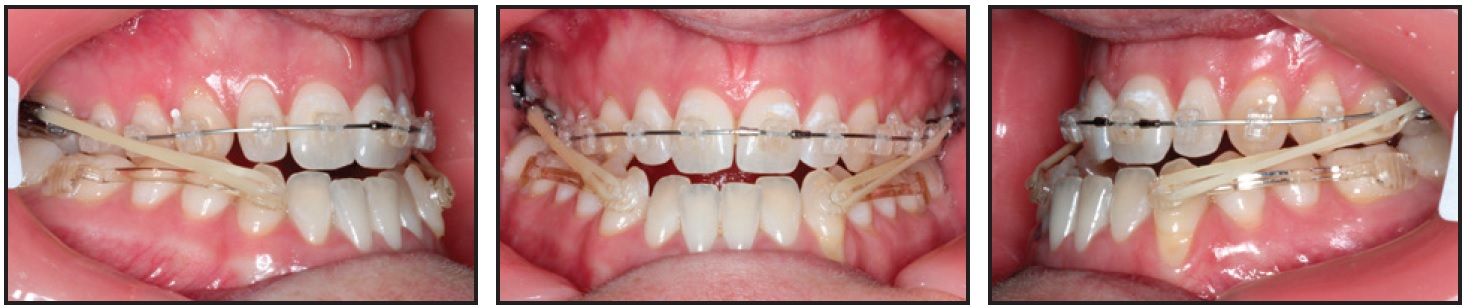 Nonsurgical Correction Of Severe Skeletal Class Iii Malocclusion