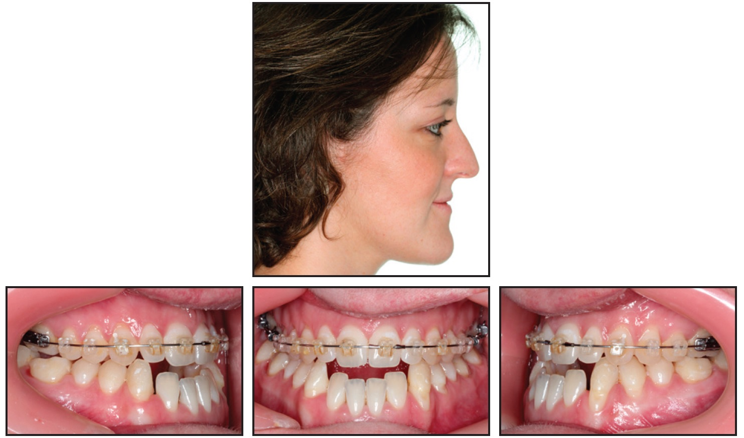 Nonsurgical Correction of Severe Skeletal Class III