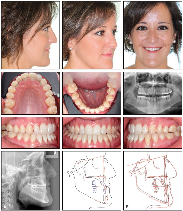 Nonsurgical Correction of Severe Skeletal Class III Malocclusion ...