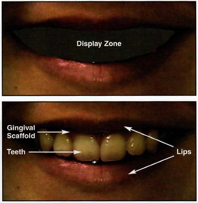 Smile Analysis and Design in the Digital Era - JCO Online - Journal ...