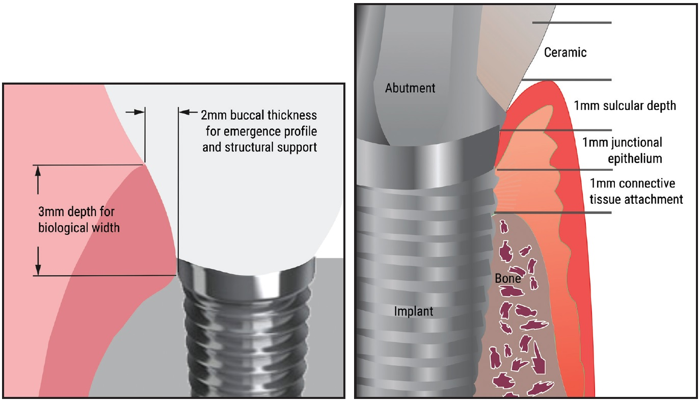 fig 1 2b 3d rule for implant placement