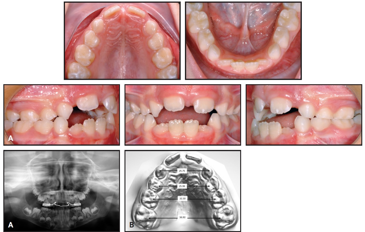 Evolution of the Leaf Expander: A Maxillary Self Expander