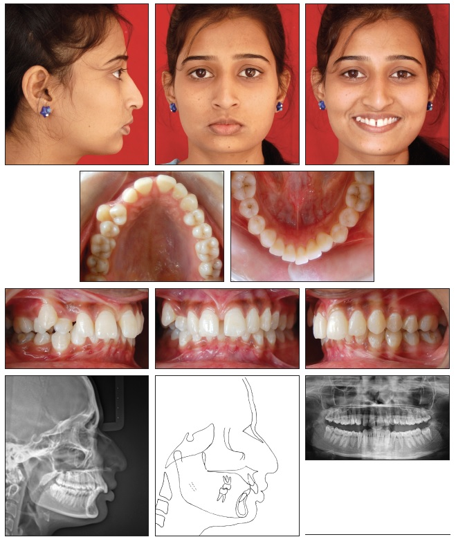 Orthodontic Management of Class II Malocclusion with
